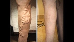 vein treatments Orleans