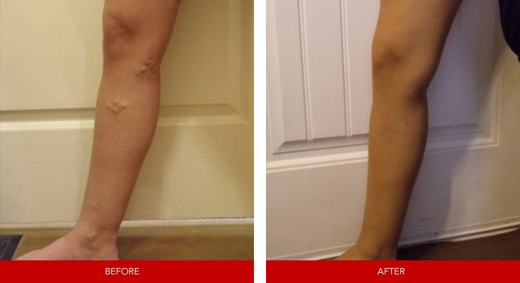 varicose vein before after28