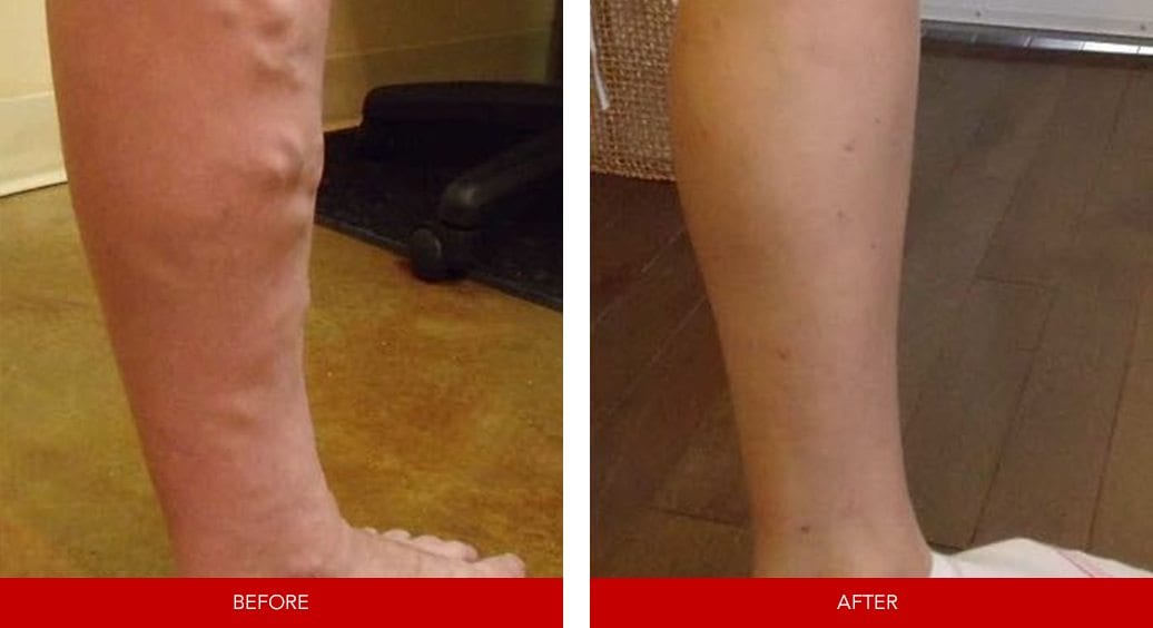 varicose vein before after27