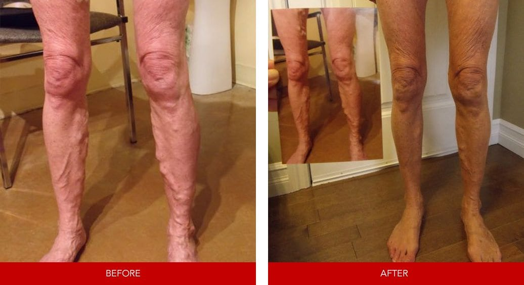 varicose vein before after26
