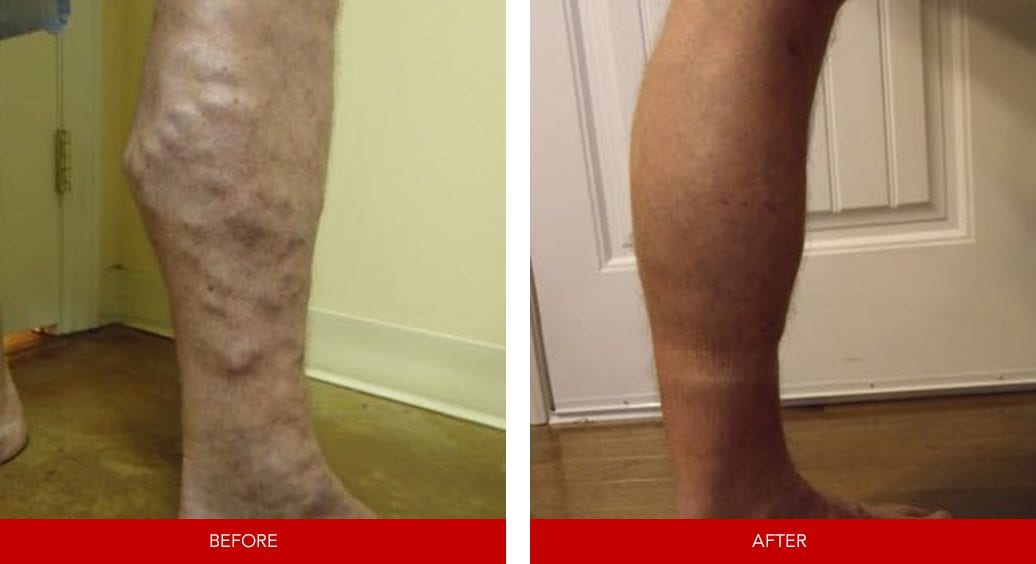 varicose vein before after25