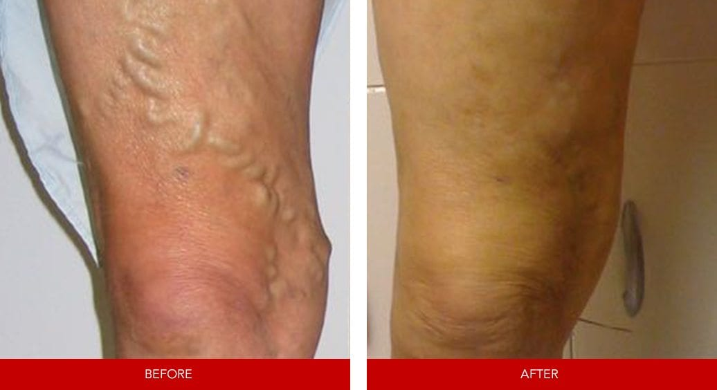 varicose vein before after24