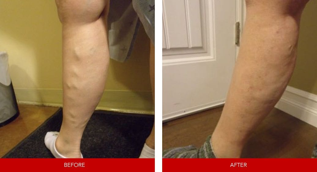 varicose vein before after23