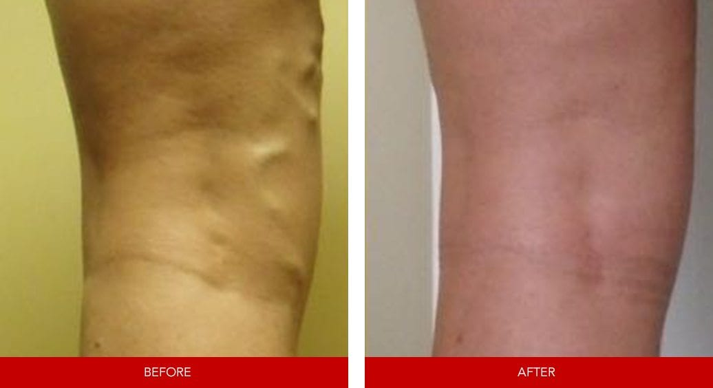 varicose vein before after22