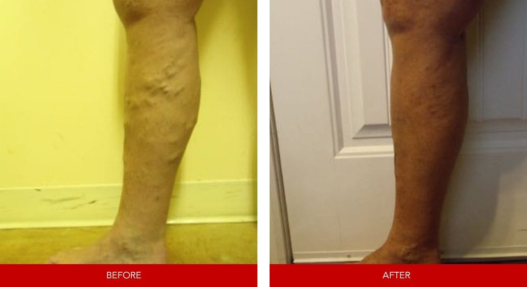 varicose vein before after21