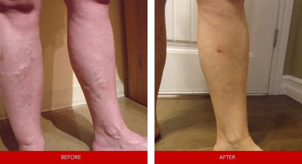 varicose vein before after20