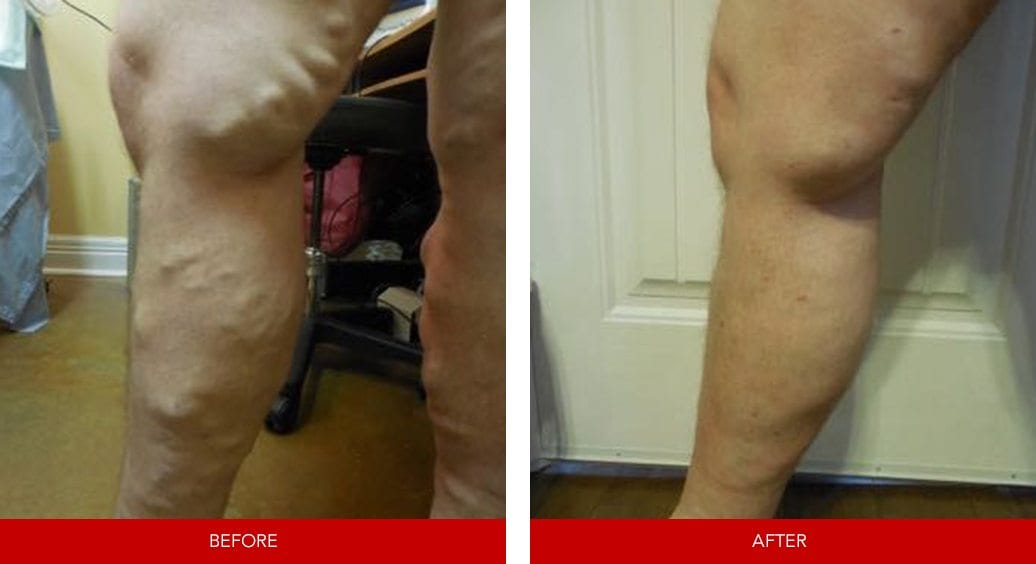 varicose vein before after19