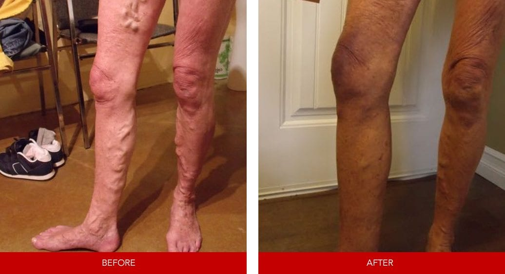 varicose vein before after16
