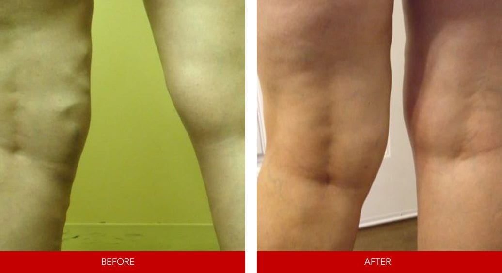 varicose vein before after15