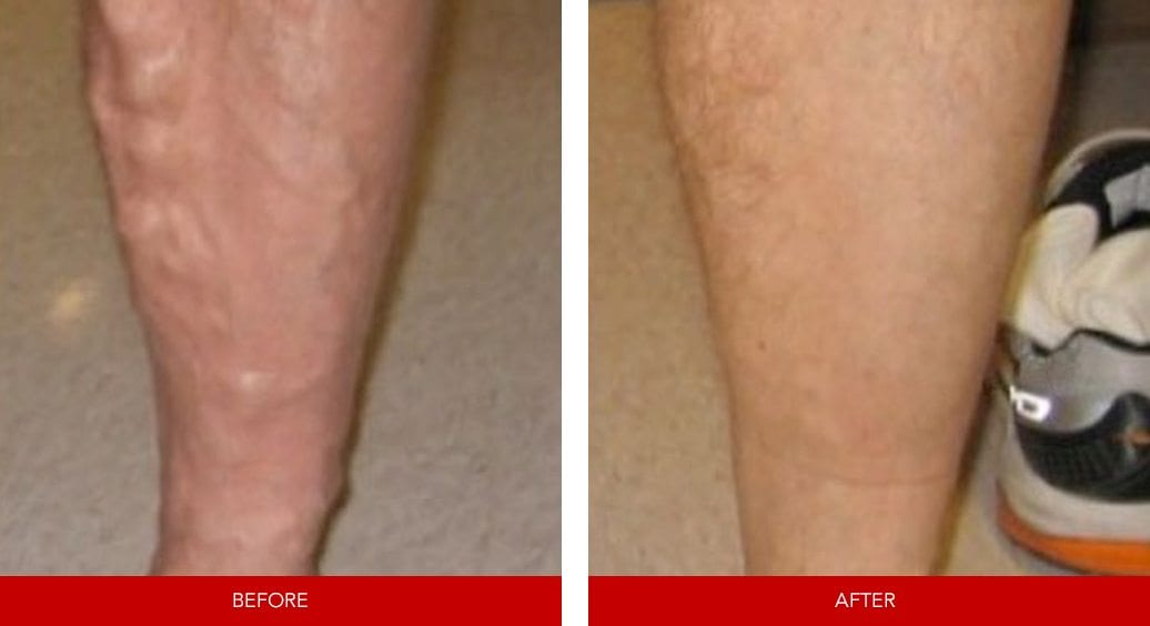 varicose vein before after14