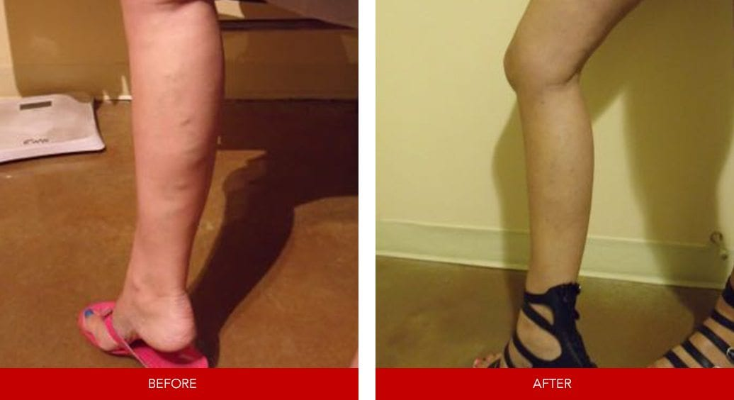 varicose vein before after13