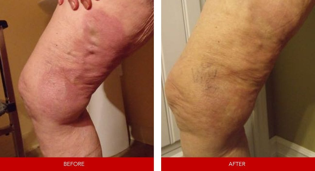 varicose vein before after12