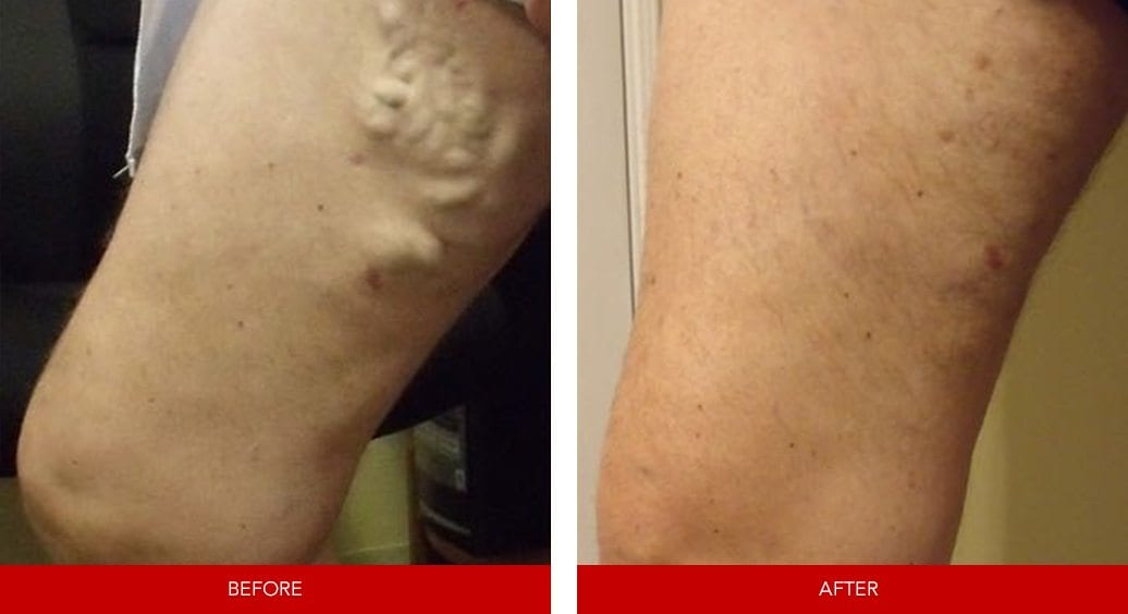 varicose vein before after11
