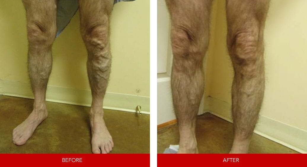 varicose vein before after10