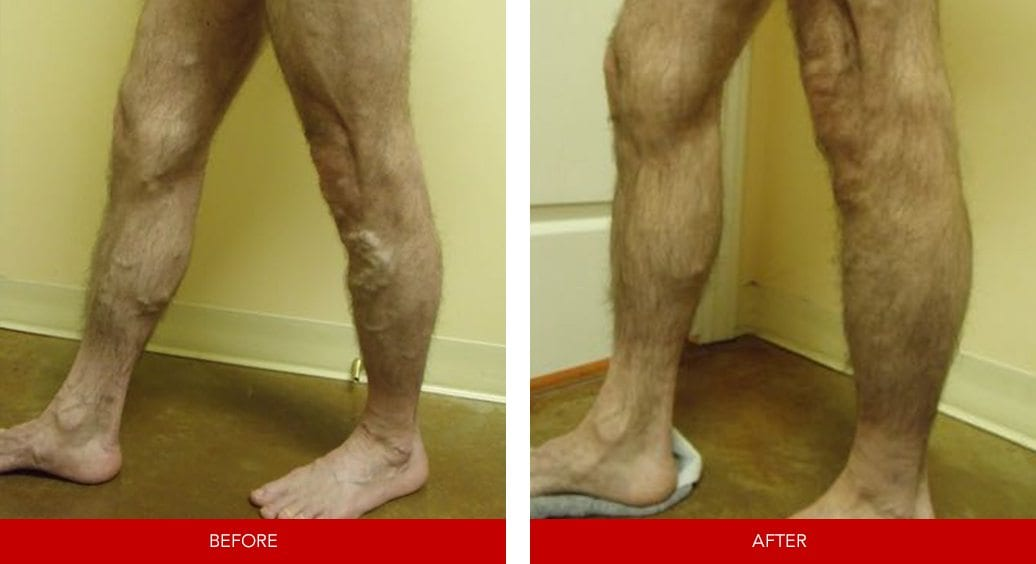 varicose vein before after9