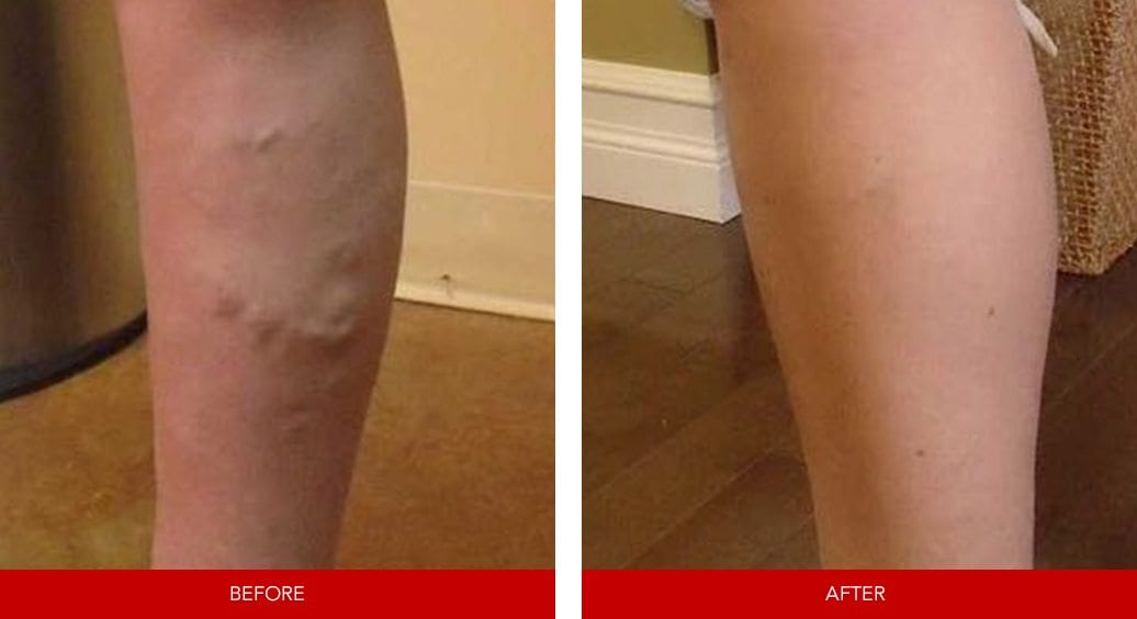 varicose vein before after8