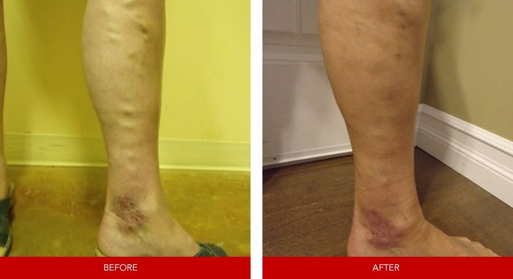 varicose vein before after7