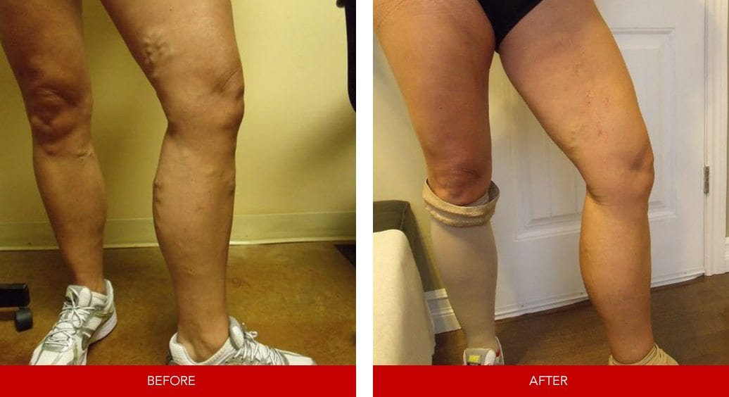 varicose vein before after6
