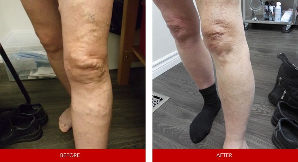 varicose vein before after5