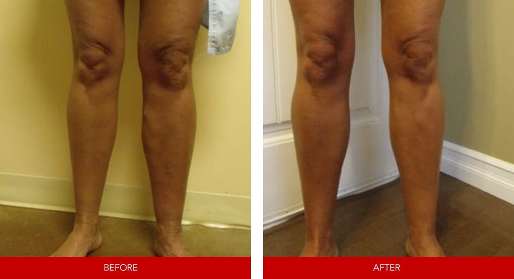 varicose vein before after3