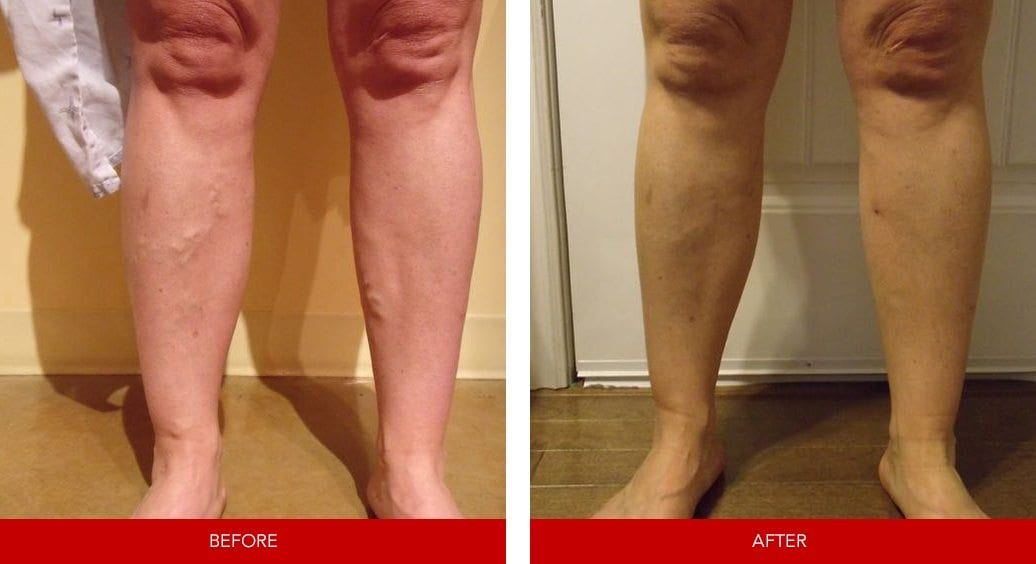 varicose vein before after4