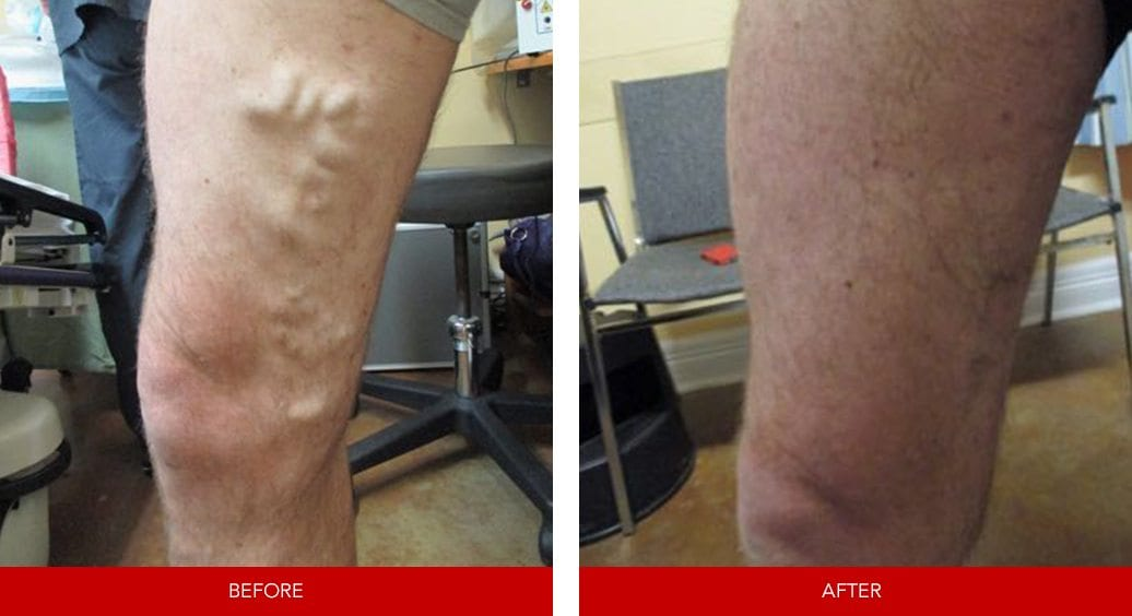 varicose vein before after2