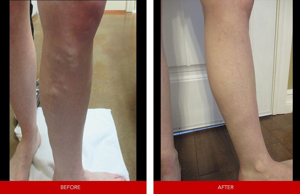 vein treatments Vaughan