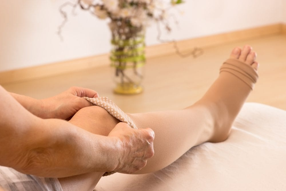 Selecting Sclerotherapy as Your Treatment