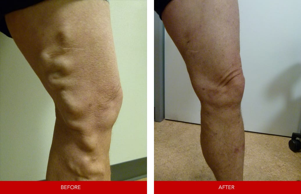 vein treatments Toronto