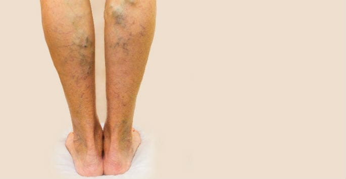 What Causes Spider Veins?