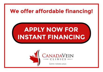 Apply for affordable financing for spider and varicose vein treatment at Canada Vein Clinics