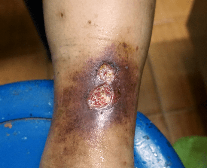 Venous Ulcers: Complications of Varicose Veins